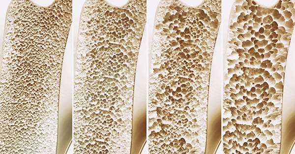 Osteoporosis 4 stages in one picture - 3d rendering; blog: 5 Ways to Prevent Osteoporosis